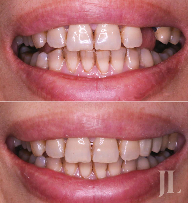 Single dental implant before and after