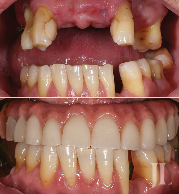 All-on-6 dental treatment before and after