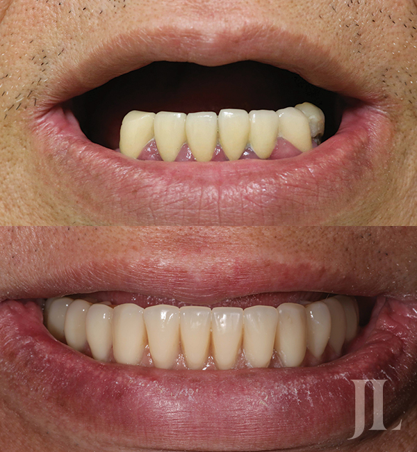 All-on-6 mandible before and after