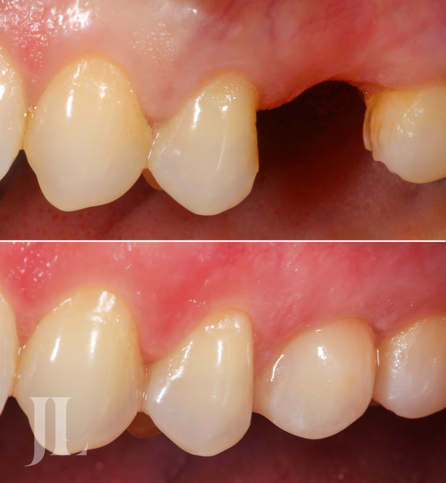 Dental implant treatment before and after