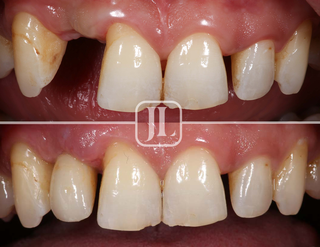 Top Dental Implant Dentist Epping NSW