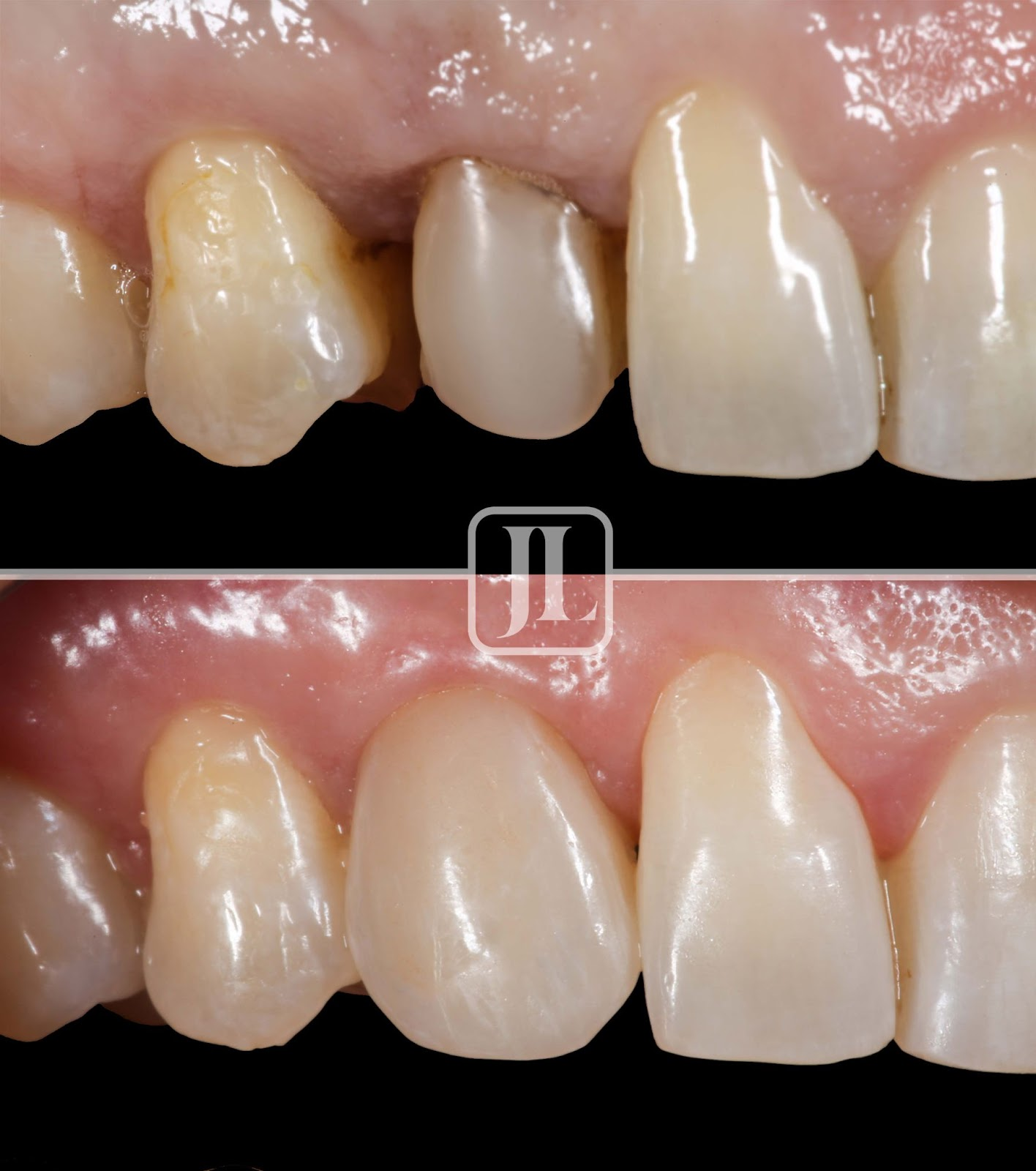 Single Implant Before and after