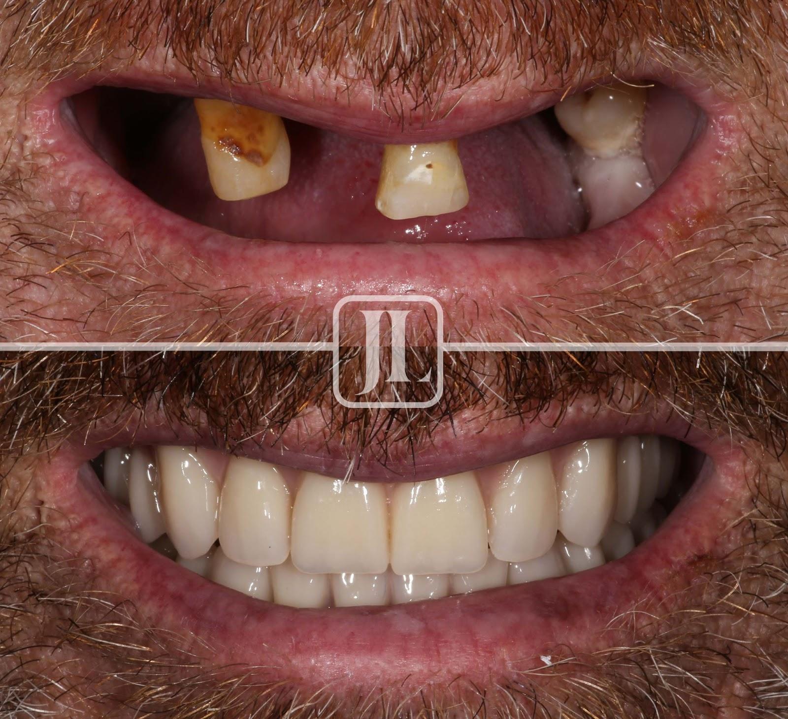 Smile Restoration – Crowns – 64 yrs Female